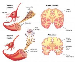 Anticorpi ce îndepărtează plăcile de amiloid din Alzheimer la modele animale