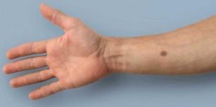 Implantul care poate semnala prezența cancerului de la primele semne
