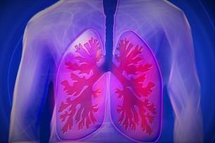 Creșterea tumorilor pulmonare încetinită la jumătate cu o nouă abordare
