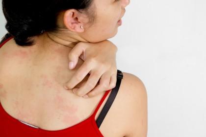 Legătura dintre alergii și sănătatea mentală