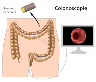 Colonoscopia