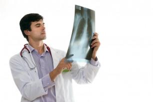 Tuberculoza latentă poate fi prevenită cu un tratament mai scurt