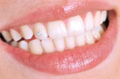 Tratamentele de albire a dinților pe bază de dioxid de titan – mai puțin dăunătoare