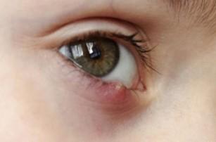Herpesul palpebral
