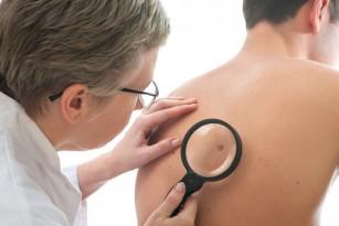Legătura dintre numărul de alunițe și cancerul de piele