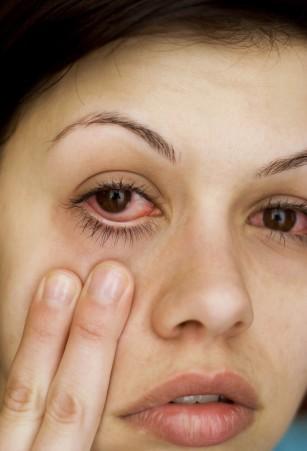 De ce mi s-au înroşit ochii şi ce trebuie să fac?