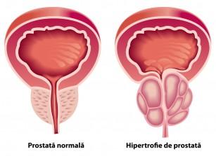 prostată mărită și erecție