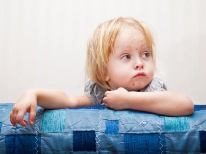 Cauzele urticariei la copil