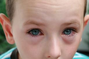 Ochiul roșu la copil - cauze și afecțiuni posibile