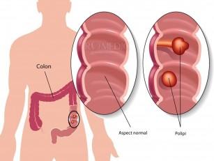 Diagnosticul de polip colon - ce trebuie să știi