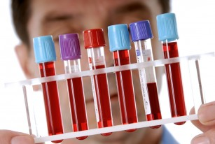 Analize pentru anemie