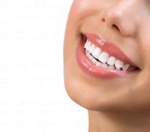 Cele mai bune practici privind albirea dentară
