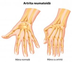 tratamentul artrozei genunchiului 3 grade durerile coloanei lombare