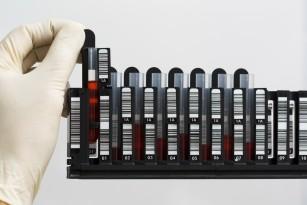 Un senzor molecular care caută leziunile ADN și supervizează repararea lor