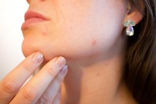 Vaccinul pentru cosuri (autovaccin acnee)