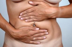 Infarctul intestinal acut (Ischemia mezenterica acuta)