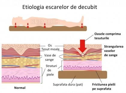 Un mod eficient de a combate ulcerele de decubit (escare, ulcere de presiune)