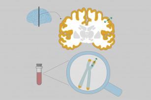Îmbătrânirea celulară este asociată cu modificările structurale ale creierului