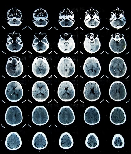 Anomalii cerebrale la pacienţii cu depresie şi anxietate