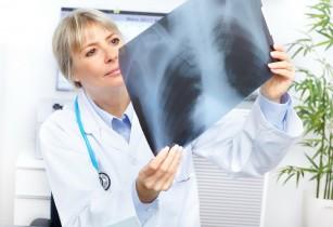 Un nou remediu pentru o formă rară de cancer pulmonar