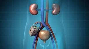 Rinichiul bio-artificial implantabil urmează să fie testat pe oameni