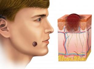 Vitamina D reduce răspândirea agresivă a celulelor melanomului