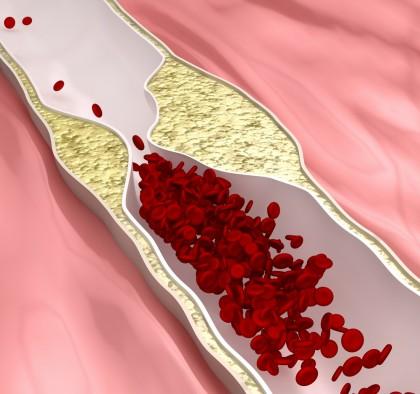 Arterele carotide îngroșate - explicații