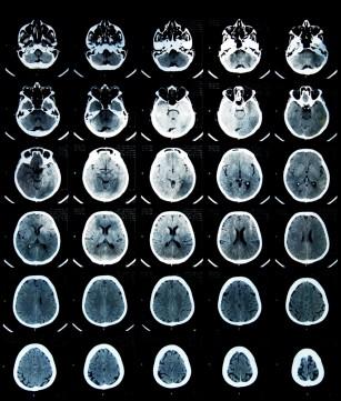 Obezitatea produce modificări vizibile în creier