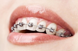 Ce se întâmplă dacă nu porți aparat dentar când doctorul îl recomandă