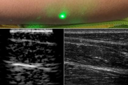 Cercetătorii au realizat primele imagini cu ultrasunete cu laser la oameni