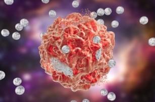 Nanoparticulele pe bază de cupru pot ucide celulele canceroase