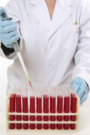 Un nou tratament crește rata de supraviețuire la pacienții cu leucemie