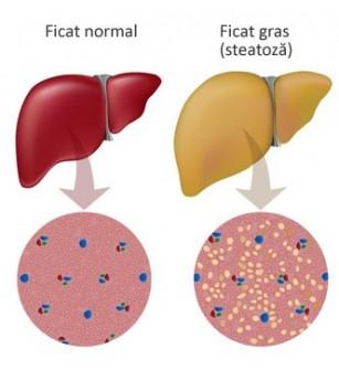 Steatoza hepatica - Ficatul gras