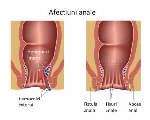 Fisurile anale