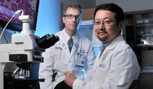 Eficiența itraconazolului în tratamentul cancerelor este dependentă de doză