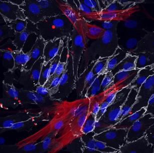 O metodă care transformă fibroblastele în celule vasculare ar putea sugera căi de încetinire a procesului de îmbătrânire