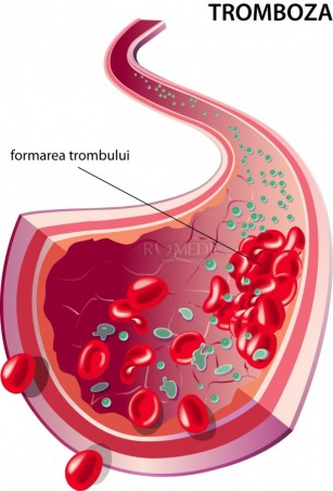Tromboza portala hepatica