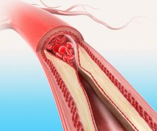 O altă cauză a infarctului miocardic