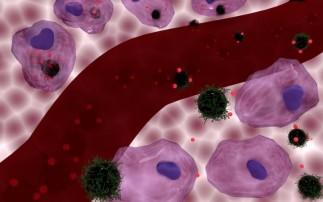 Încălzirea celulelor canceroase crește eficiența tratamentelor împotriva cancerului