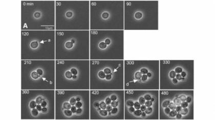 Noi modele fizice prezic modul în care tumorile cresc