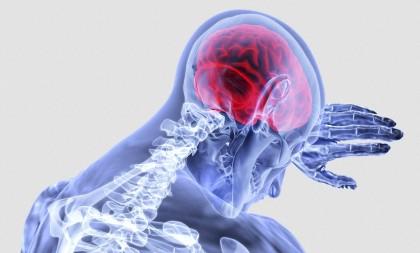 Accidentul vascular major, prezis cu ajutorul unui nou instrument, la pacienții cu accident vascular minor