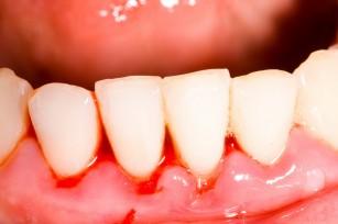 Sângerarea gingivală poate fi semn al unui deficit de vitamina C