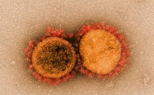 Celulele sistemului imun luptă împotriva SARS-CoV-2 prin numeroase ținte virale