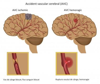 Riscul de accident vascular cerebral este semnificativ mai mare la pacienții cu COVID-19