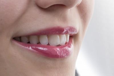 Anomalii dentare ce pot fi corectate ortodontic