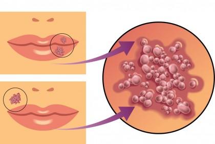 Simptome diferite în infecţia cu virusul herpetic ar avea legătură cu variaţii în expresia genelor virale