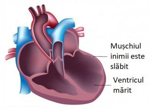 Dilatarea atriilor sau a ventriculelor - explicații cauze, riscuri