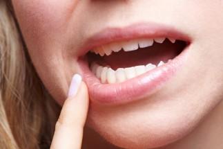 Tipuri de leziuni ale mucoasei bucale - diagnostic diferențial