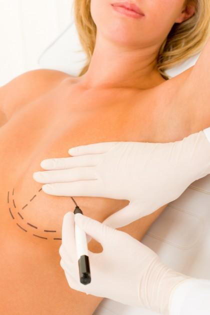 Cum afectează suprafețele implanturilor mamare din silicon sistemul imunitar?