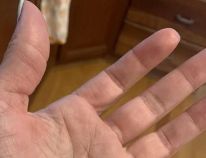 Tehnologia ce restabilește simțul tactil în cazul nervilor afectați ca urmare a unor leziuni